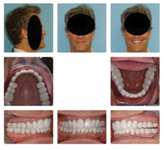 Patient had undergone double jaw surgery to advance maxilla and mandible to eliminate OSA without any orthodontic preparation. OSA persisted. Had orthodontics been done pre-surgically to expand the mandibular arch, the maxilla could have been expanded surgically improving the likelihood of eliminating OSA.