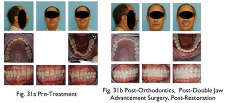 62 yo male patient presented with severe fatigue and OSA. Pre-surgical orthodontics broadened the lower arch allowing the maxilla to be expanded at the time of surgery.