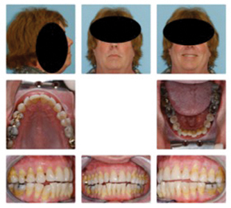"""This patient wore a MAD (Mandibular Advancement Device) for OSA for several years causing the maxilla to be retracted with a """"headgear effect"""" and producing an open-bite. The appliance became less effective in reducing the OSA."""