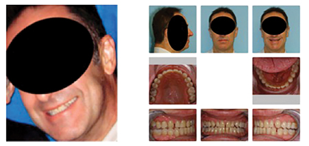 47 yo male with normal bite relationship prior to CPAP treatment. Fig. 33B After approximately 10 years of CPAP therapy an anterior crossbite was produced and CPAP was no longer effective. Maxilla-mandibular advancement surgery was recommended to treat his OSA.