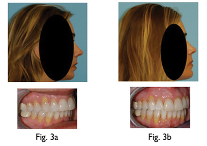 Fig. 3A: Patient with perfect Class I occlusion (with genioplasty) prior to Orthognathic Surgery for OSA Fig. 3B: Post-Orthognathic Surgery for OSA. Airway in lateral and cross-section view Pre and Post-Orthodontic and Orthognathic Surgery for OSA BP 179/ 121 (with meds) prior to surgery and BP 128/89 (no meds) 7 weeks post surgery.