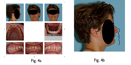 Fig. 4A Adolescent male with Class II deep bite malocclusion and large overjet with both jaws massively recessed from ideal position in face. Fig: 4B Bolton norm superimposed on Glabella and soft tissue Nasion shows maxilla and mandible severely recessed in face. Patients with this degree of lack of forward growth of both jaws is not uncommon in all industrialized societies.