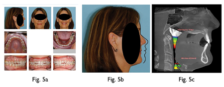 Patient had previously undergone surgery to advance mandible to correct Class II occlusion. This surgery did not advance the maxilla so the mandible was advanced to a pre-existing recessed maxilla. Fig. 5B: Patient with Bolton norm superimposed on Glabella and soft tissue Nasion shows both maxilla and mandible still severely recessed from ideal positions. Fig. 5C: Airway is completely inadequate (Minimal x-section of 40.8 mm2) and patient still suffers from OSA.