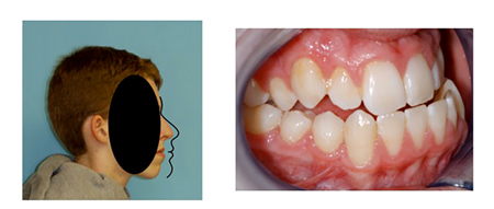 Patient with severe Class Ill malocclusion has both maxilla and mandible massively recessed from Bolton norm superimposed on Glabella and soft tissue Nasion. Class Ill patients rarely have mandibles which protrude in the face. Most Class Ill patients have both jaws recessed from ideal positions.