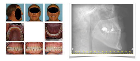 Patient underwent surgery for Class Ill malocclusion to set mandible back 30+ years prior. Lateral head X-ray shows reduced airway as a result of mandibular setback which contributed to OSA.
