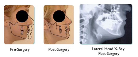 Patient underwent surgery to advance maxilla and mandible. Indicator line measurement ideal for adult female and Bolton norm superimposed on face shows ideal placement of both jaws. Airway is a massive 20 mm.