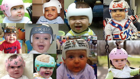 Variety of helmets worn over 3-6 month period to align the cranium