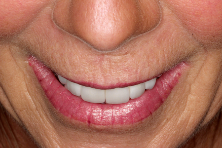 Tipped Down Smile — Positions of Upper Anterior Crowns to Vermillion Border.