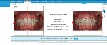 Dawson Wizard Numbers for Where to Set Incisal Edges and Gingival Margins for Upper Anteriors.
