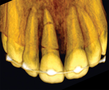3D reconstruction feature of CBCT showing two fracture lines at tooth 1.1.