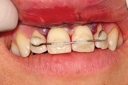 Splint on Maxillary incisors.
