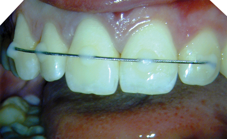 Clinical photograph of splint applied to stabilize tooth 1.1.