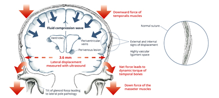 Illustration: Mechanism of Episodic Paroxismal Trauma caused by jaw clenching in MS.