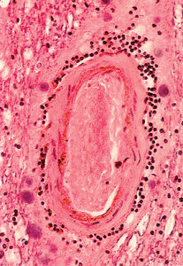Hyalinised vein wall (resembling an artery) with perivascular lymphocytes in multiple sclerosis. Source: Adams C. W. M. 1989. Color Atlas of Multiple Sclerosis & Other Myelin Disorders.