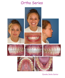Orthodontic series has the advantage of occlusion images and a full head portrait.