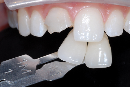 Lab communication should center around excellent images that the ceramist can use to improve the result.