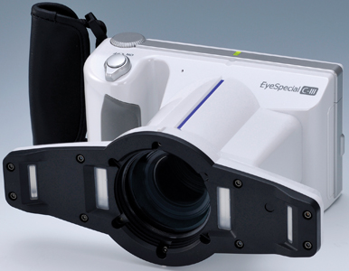 The Shofu EyeSpecial C-III has a built-in flash and lens.
