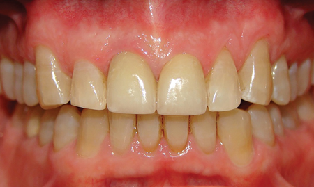 Central Incisor Aesthetic Restorations.