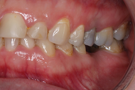 A 34-year-old female consulted me with extremely worn front teeth in the upper jaw. A canine deciduous canine was still present. The permanent canine was present but horizontally included. The lower front teeth were crowded (Figs. 1-5).