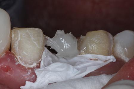 Transitional Bonding for the Severely Eroded Dentition