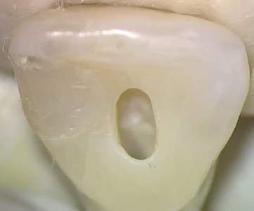Maxillary central incisor with slot-like access cavity that is cut short of the incisal edge, adequately under the cingulum, and has been kept narrow in its mesial-to-dimension.