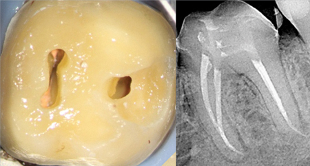 Mandibular molar with nearly total calcification of the pulp chamber prior to RCT accomplished through two perfectly dead-on access entry ports, leaving a .75 mm high pulp chamber isthmus between. Note the definitive treatment results in the apical thirds of each canal (courtesy Dr. N. Pushpak).
