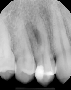 Pre-operative periapical radiograph showing a deep distal filling on tooth #14 and a radiographic finding compatible with a lesion of endodontic origin.