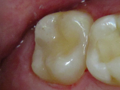Postoperative view of the completed direct posterior bulk fill composite restoration on tooth #27.