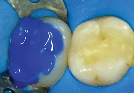 A total etch technique using 37% phosphoric acid was performed to condition the enamel and dentin.