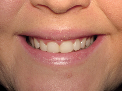 Pre-op before gingival and osseous recontouring.