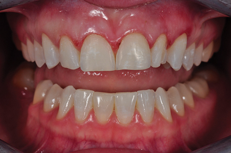 Composite removal and tooth preparation.