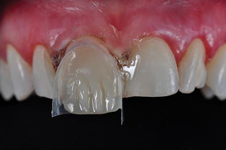 Application of Dentin Shade.