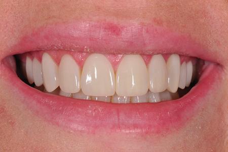 Un-retracted smile post-op frontal view.