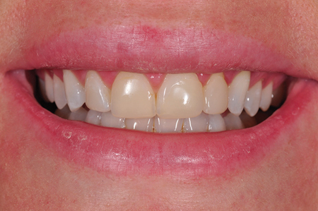 Un-retracted smile pre-op frontal view.