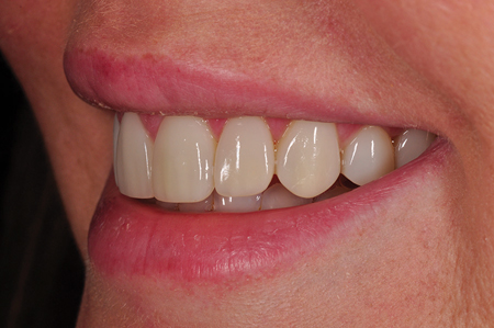 Un-retracted smile post-op left lateral view.