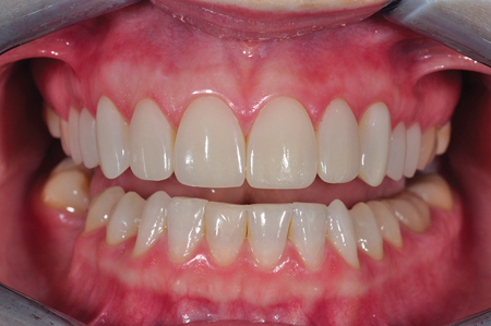 Retracted smile post-op frontal view.
