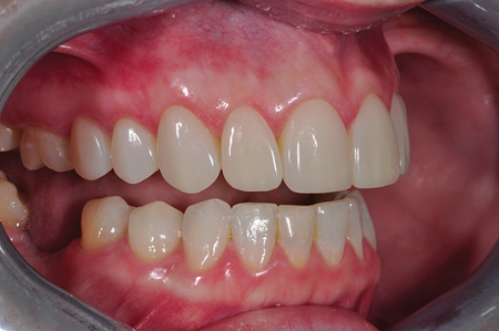 Retracted smile post-op right lateral view.
