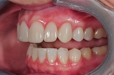 Retracted smile post-op left lateral view.