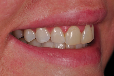 Un-retracted smile pre-op right lateral view.