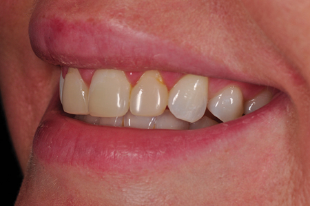 Un-retracted smile pre-op left lateral view.