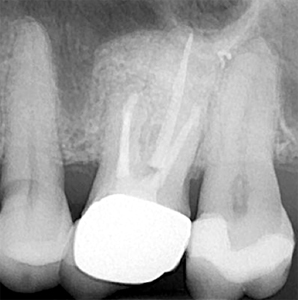 Nine-month post-operative radiograph showing excellent bone regeneration.