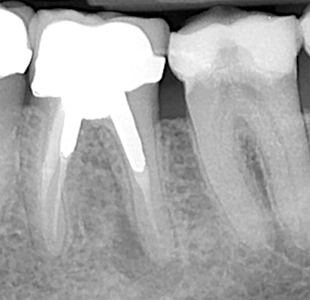 Tooth #3.6. All canals are under-instrumented and demonstrate obturation density deficit. Retreatment of the tooth would necessitate removal of the cast post core which could lead to fracture of the mesial and distal roots.