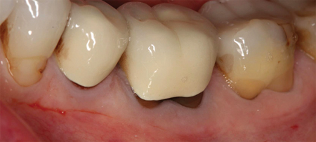 The flap is designed to correct the areas of recession. Vertical and horizontal incisions present pressure of the flap on retraction, the roots were planed to ensure a clean surface enhancing improved adherence of flap to the root.