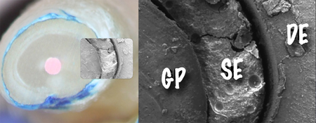 SEM of root section filled with gutta-percha (GP) and AH Plus® Root Canal Sealer (SE). Note the gap between the GP, the SE and the dentin (attribution Drs. Ørstavik and Eldeniz).