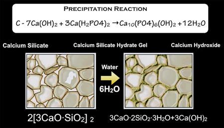 Precipitation reaction of the bioceramic (calcium phosphate). The hydroxyapatite co-precipitated within the calcium silicate hydrate phase produces a composite-like structure, reinforcing the set cement. The bioactivity of the calcium-silicate-based materials has been shown to produce mineralization within the subjacent dentin substrate, extending deep within the tissues.