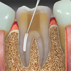An aliquot of EndoSequence BC sealer is injected into the coronal and middle thirds of the root canal space using tips designed for the sealer cartridge.