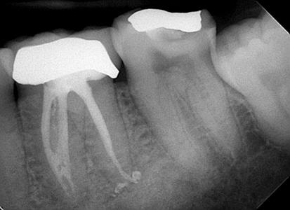 Six-months post-procedure.