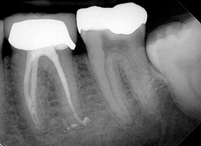 12-months post-procedure.