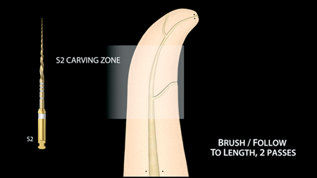 The PTG S2 carves away restrictive dentin in the middle third of the canal. The PTG S1 and PTG S2 are used in a Brush/Follow sequence to length.