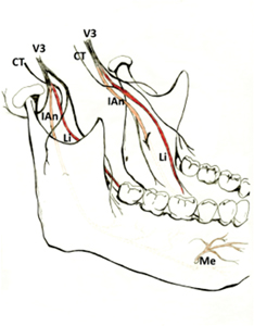 The course of the third division of cranial nerve five and the associated peripheral branches. Trigeminal nerve – mandibular branch (V3); Chorda tympani (CT); Inferior alveolar nerve (IAn); Lingual nerve (Li); Mental nerve (Me).